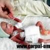 Copilul prematur