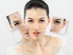 Cum se poate trata cu succes acneea?