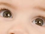 Simptomele ambliopiei la copii