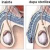 Cum se efectueaza sterilizarea chirurgicala?